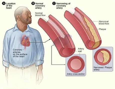 করোনারি আর্টারী রোগ (Coronary Artery Disease)